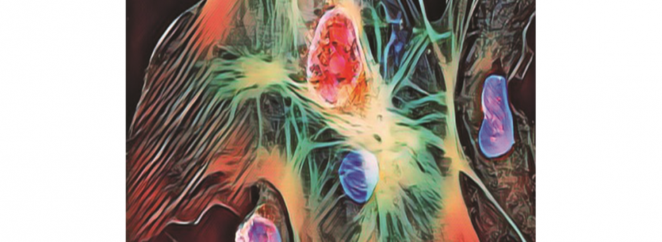 Transfemoral Aortic Valve-in-Valve Replacement in Patient with Aortic Root Pseudoaneurysm